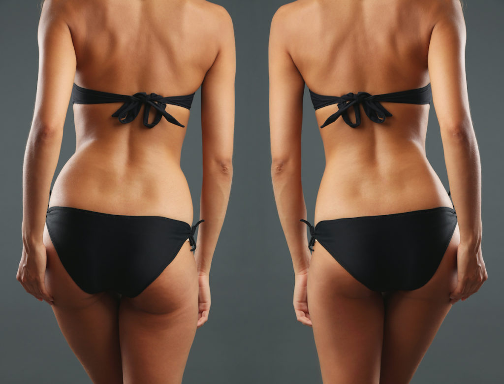 smart liposuction what is it?